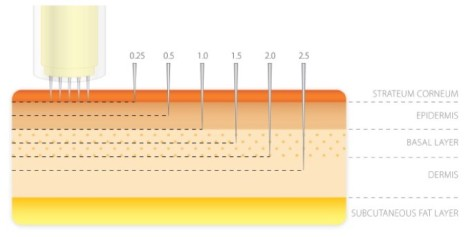 Microneedling technique.jpg